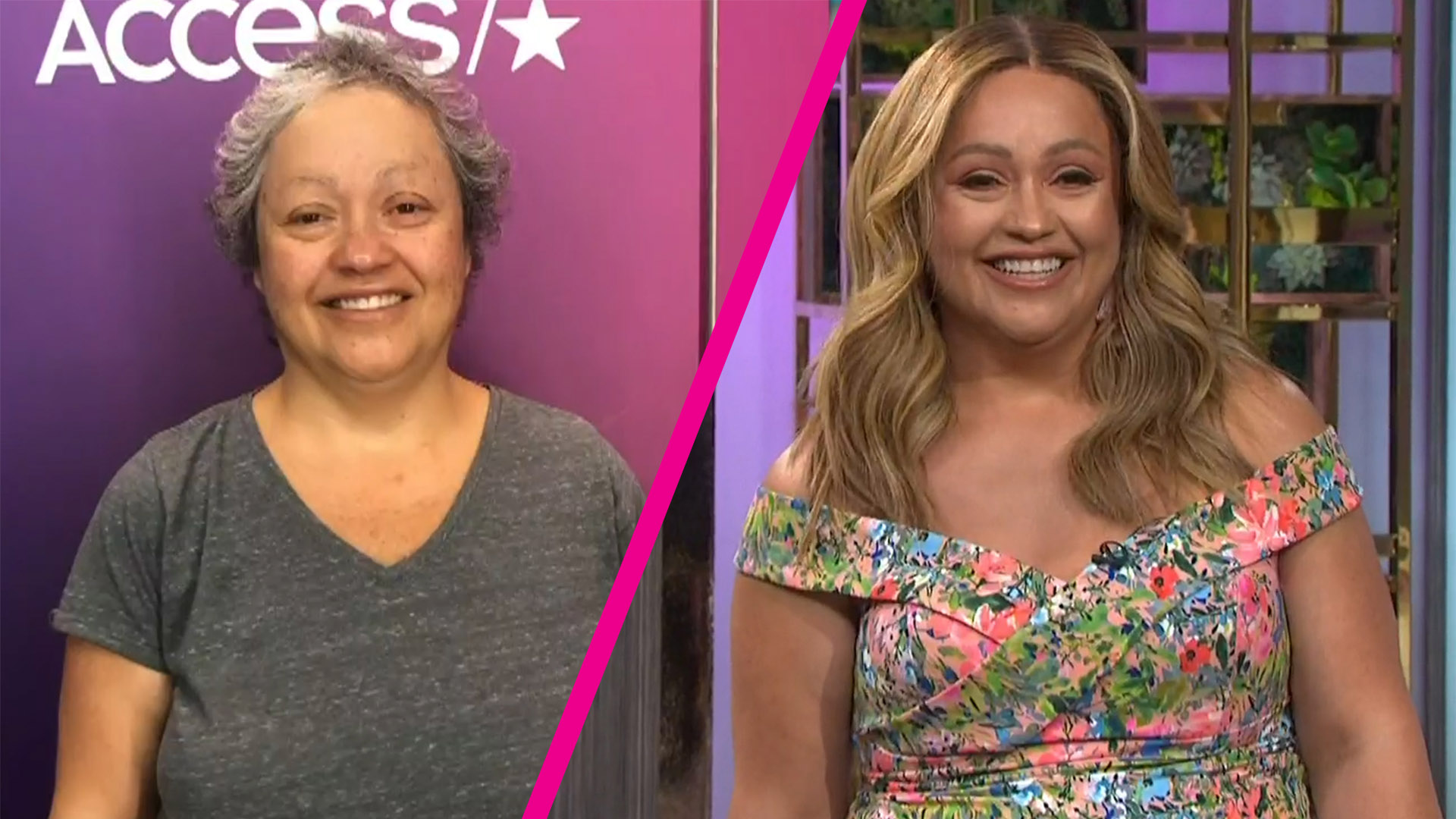 50 Year Old Woman With Breast Cancer Looks Unrecognizable