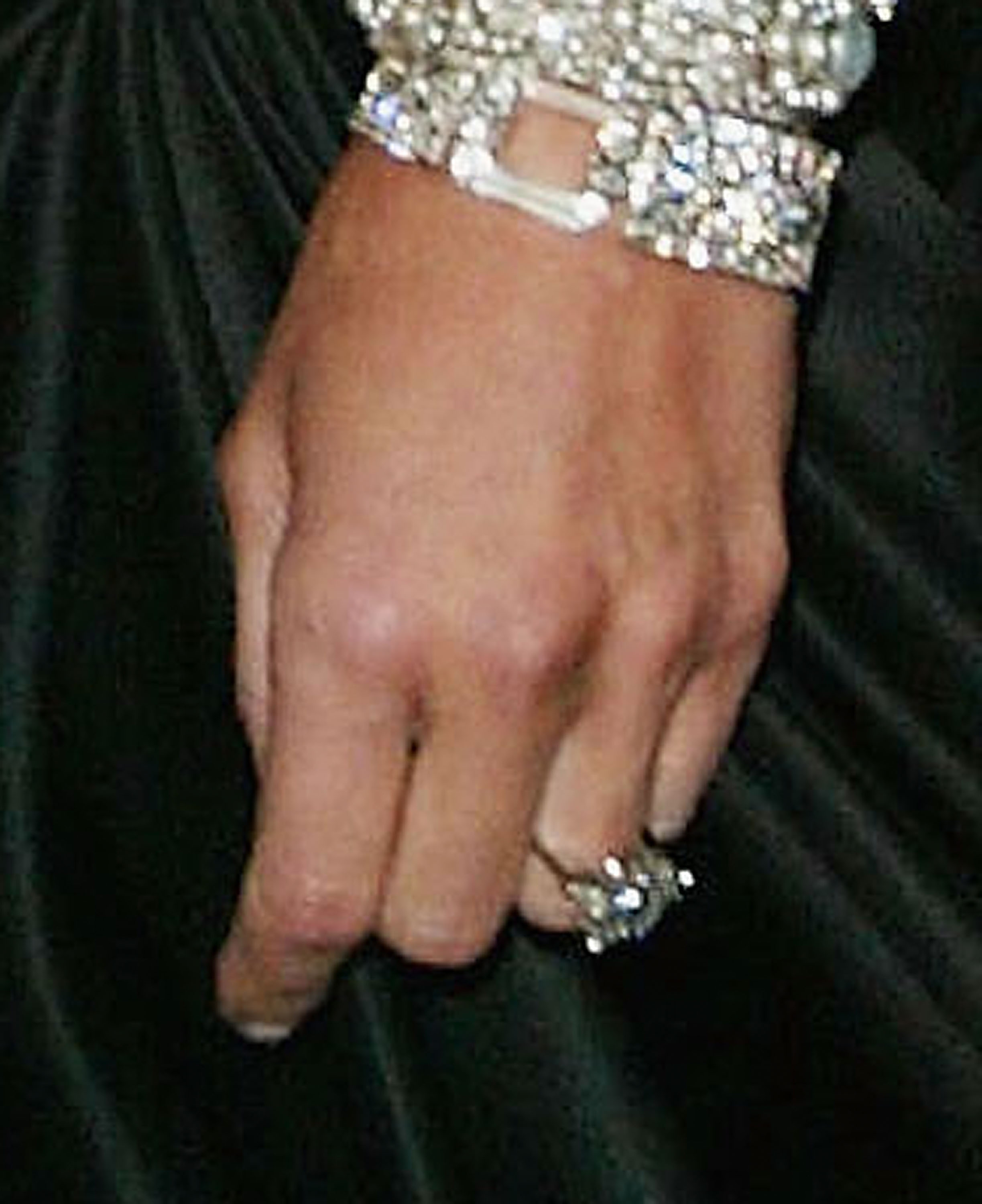A closeup view is seen of the engagement ring that Donald Trump gave to girlfriend Melania Knauss at the 'Dangerous Liaisons: Fashion and Furniture in the 18th Century' Costume Institute benefit gala on April 26, 2004 at the Metropolitan Museum of Art, in