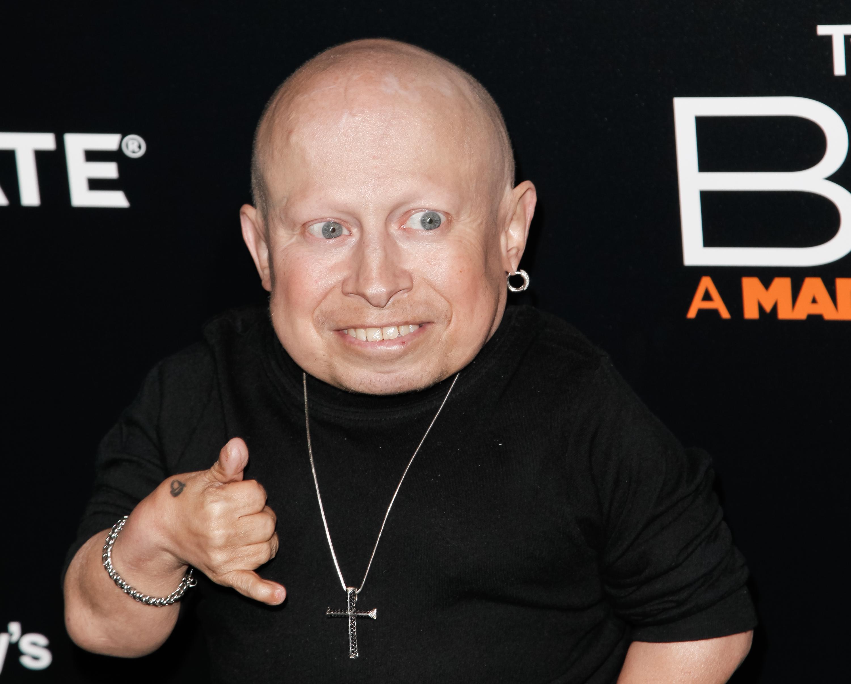 Actor-Verne-Troyer-Dead-At-49